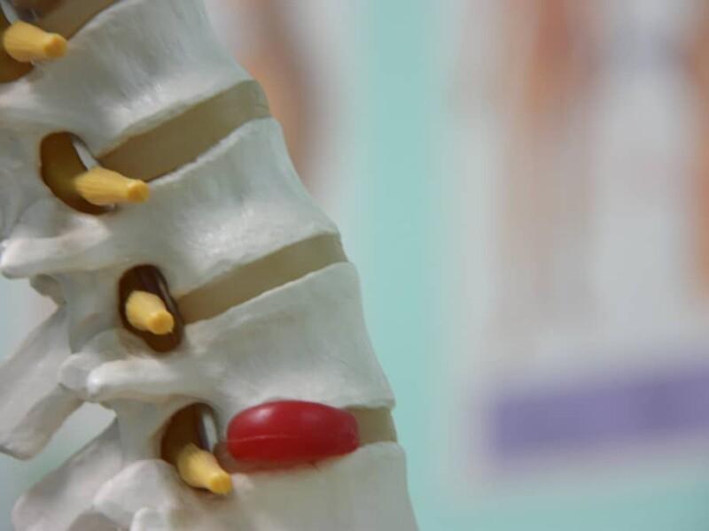 photo d'une colonne vertebrale